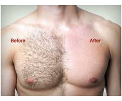 Body Hair Removal Service in Chennai